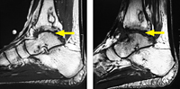 Ankle Distraction for Treatment of Ankle Arthritis